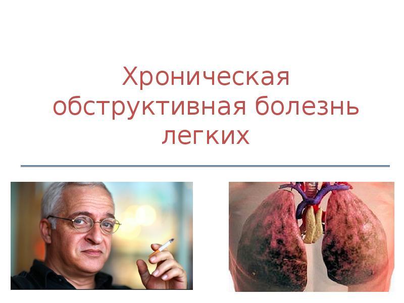 Курить — своей жизни вредить! Заболевание ХОБЛ